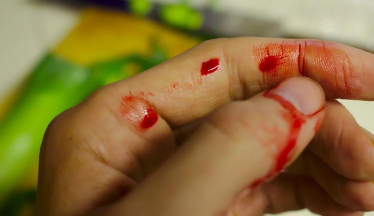 Muž si v práci poranil ocelovým plechem prsty a byl převezen do nemocnice. Pracoval však pod vlivem alkoholu