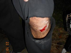 Muž se snažil roztrhnout rvoucí se psy. Přišel při tom o kalhoty