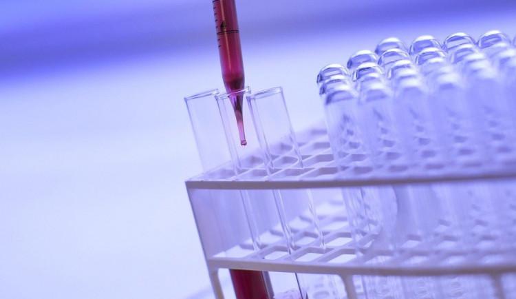 Vědecká laboratoř univerzity odložila velkokapacitní testování na středu. Důvodem je chybějící látka